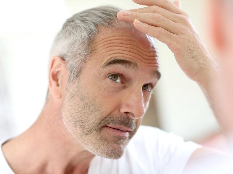 transplantacja włosów w novoderm